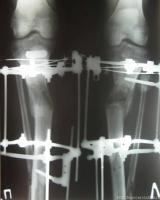 Рентген через 105 дней