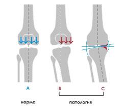 Изображение - Сустав ноги 10 okriv6
