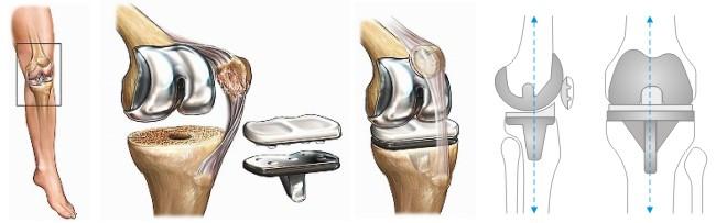 Протез коленного сустава сша суставит стоимость в киеве