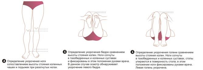 упражнения для коленного сустава видео