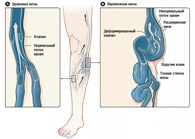Уровень сахара в крови из вены